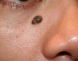 Before mole removal on face