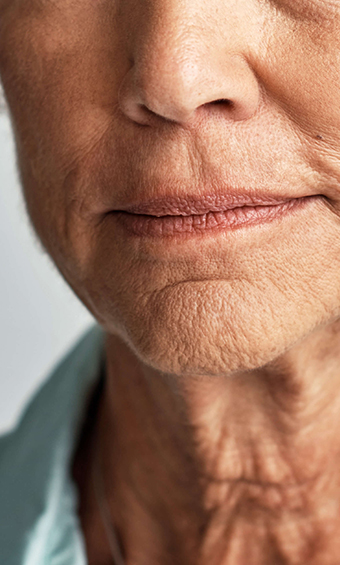facial ageing - model image 001
