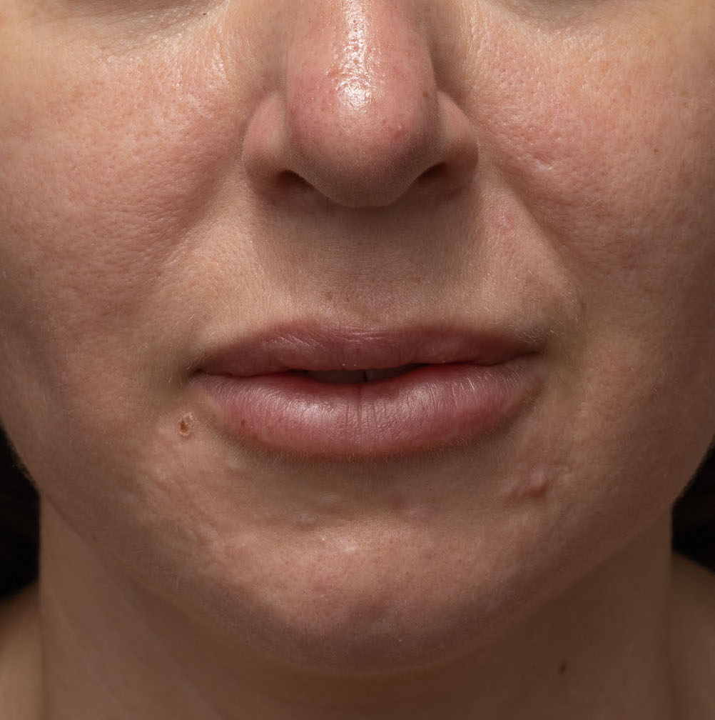 Lip-dissolve-before
