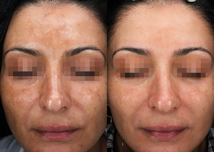 melasma treatment before and after - real patient - image 001 - front view