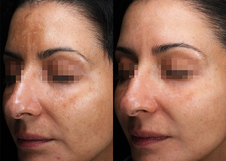 melasma treatment before and after - real patient - image 002 - left side