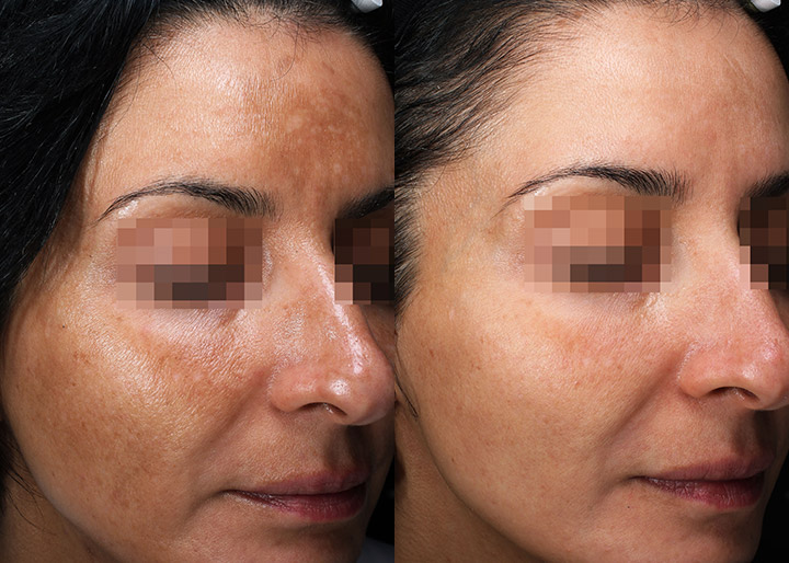 melasma treatment before and after - real patient - image 003 - right side