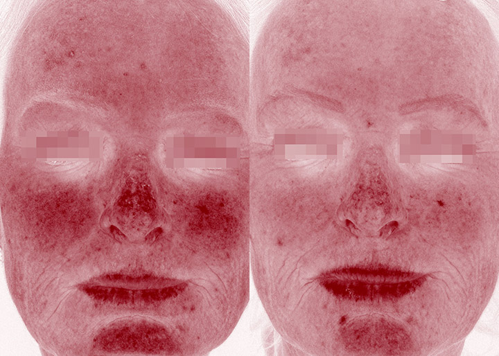 Rosacea patient before and 6 weeks after, photo 01a