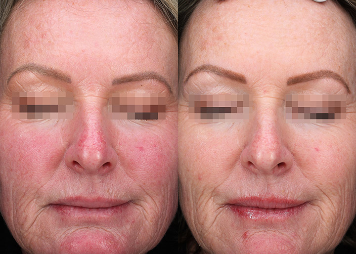 Rosacea patient before and 6 weeks after treatment, photo 02a