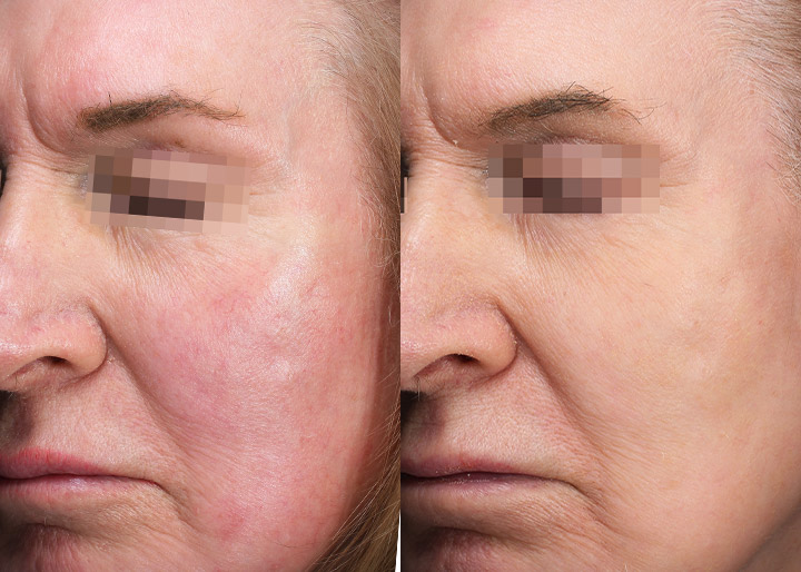 A vascular laser treatment before and after, patient photo 01, left side angle view