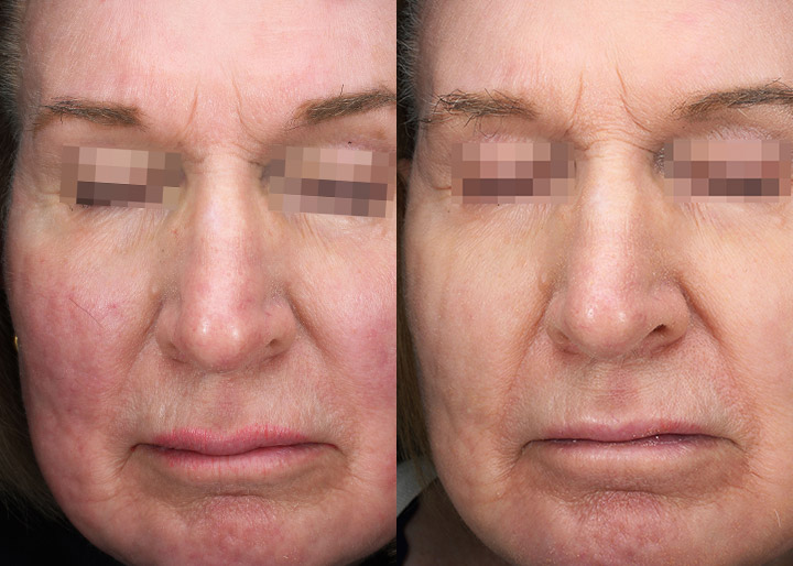 Vascular laser treatment before and 3 months after, patient photo 02, front view