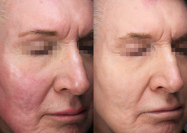 Vascular laser treatment, a patient before and 3 months after, photo 03, right side angle view